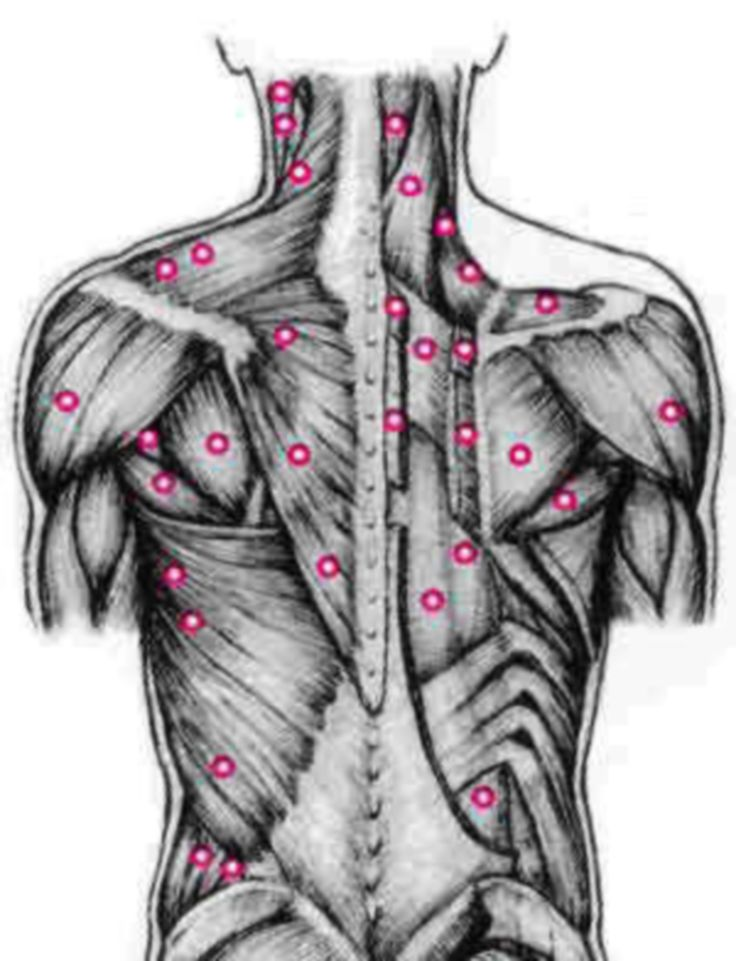 Trigger Point Therapy for Fibromyalgia and Knots