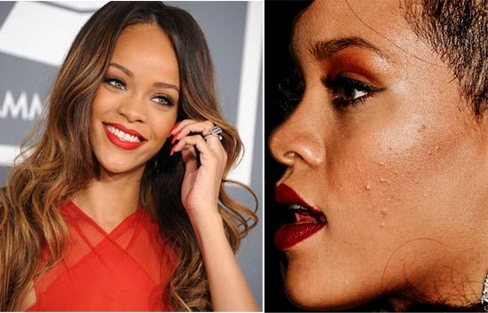 Rihanna - Celebs with acne, zits, pimples #celebrity #skin #hollywood #makeup #makeover #zits --- http://www.acneonestep.com