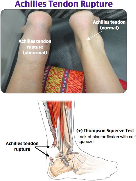 """Achilles Tendon Rupture  """"Loud pop"""" normally while exercising.  Tx in ED: immobilization in a short-leg splint, posterior splint keeping the foot in plantar-flexion, non-weightbearing until seen by an orthopedic surgeon. Definitive repair is surgical.   ***""""FluoroquinoLONES hurt attachments to your BONES.""""***"""