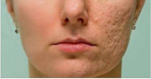 Frote esto en cualquier cicatriz, arruga o mancha que tiene en su piel y mira como desaparecen en cuestión de minutos! Incluso los médicos están sorprendidos! | Salud con Remedios