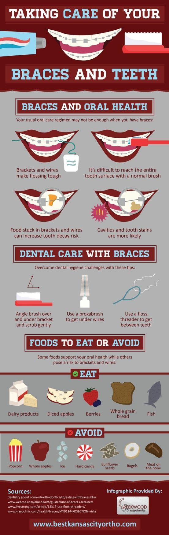 best dental images on Pinterest