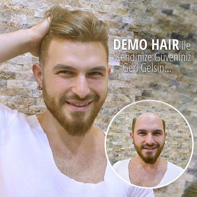 Demo Hair Quantum Sistem ile! %100 gerçek saçtan üretilen doğal, kalıcı, dilediğiniz renk ve kolay şekil verilen dikkat çekici saçlara sahip olun... Detaylı bilgi için 02122240580 WhatsApp 05322382420 #demohair #protezsac #sacekimi #alopesi #sackiran #pelat #yanık #kemoterapi #newimage #progen #haircare #sacbakimi #prp #mezoterapi #hairstyle #saç #hair