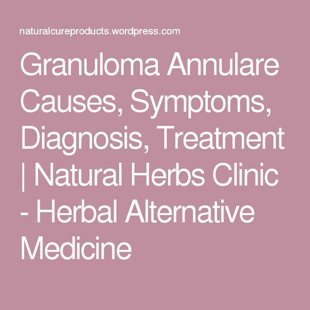 Granuloma Annulare Causes, Symptoms, Diagnosis, Treatment | Natural Herbs Clinic - Herbal Alternative Medicine