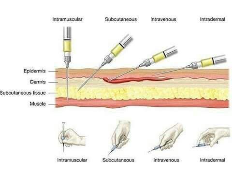 Formas de inyectar