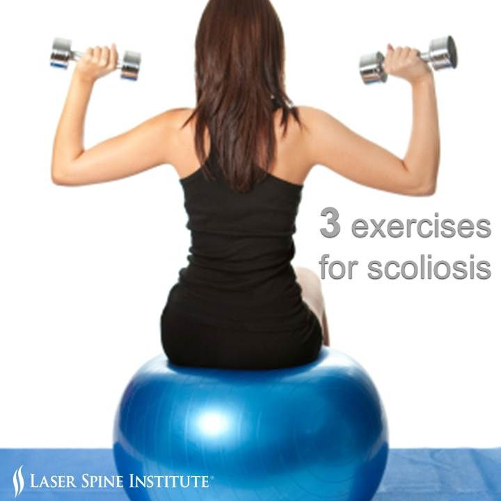 Exercises for #scoliosis. Click the picture to read 3 exercise tips.