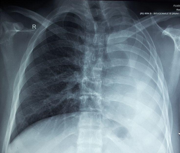 Persistent atelectasis left lung due to left main Bronchus stenotic