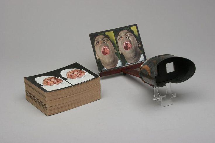 Antique Rainforth Stereoscopic Skin Clinic Stereoview Slides Viewer Dermatology
