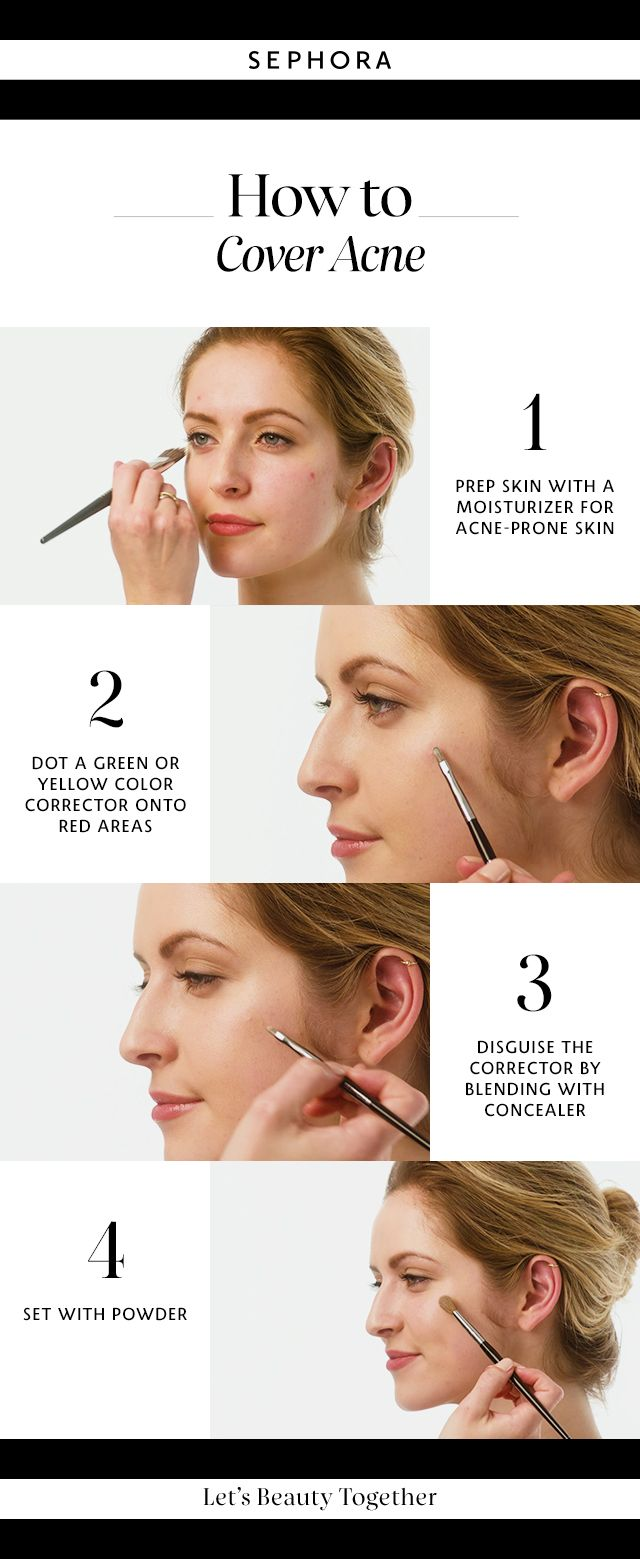 Learn how to cover acne. Want more details? Click the image to watch a full tutorial on our YouTube channel. #Sephora