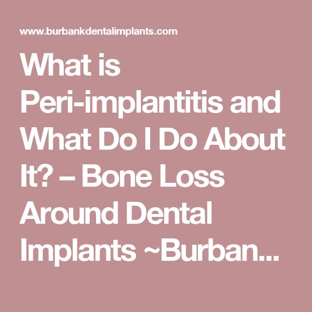 What is Peri-implantitis and What Do I Do About It? – Bone Loss Around Dental Implants ~Burbank Dentist, Ramsey Amin Reviews | Ramsey A. Amin, DDS