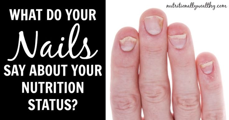 """What are your fingernails trying to tell you about your nutrition status? Thin, brittle or slow growing nails can indication malabsorption, low stomach acid, and a low nutrient diet. White spots on nails are usually indicative of low zinc status (and low stomach acid due to zinc as precursor). According to Ray Peat,""""White stripes across …"""