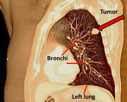 What are some symptoms that you need to see a lung specialist?