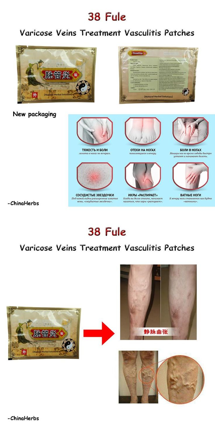[Visit to Buy] 10pcs/lot varicose veins 38 Fule Vasculitis patches vasculitis spray compression stockings varicose  spider leg veins #Advertisement