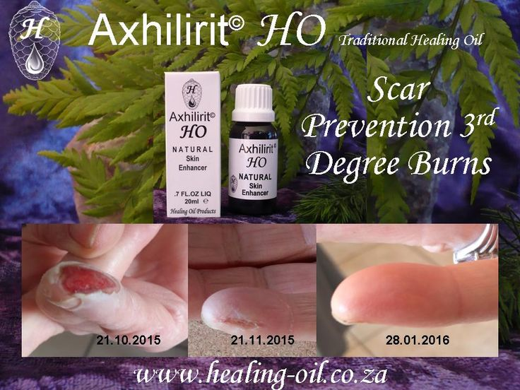Axhilirit HO Skin Enhancing SCAR PREVENTION Minimize or negate scar and keloid formation of broken skin. 3rd Degree Burn. 072 588 9090 www.healing-oil.co.za