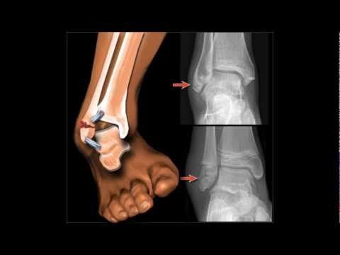 ▶ Hawkes Physiotherapy Lateral ankle sprain video - YouTube