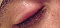 Gözlerinizdeki Arpacığı Evinizde Tedavi Edin