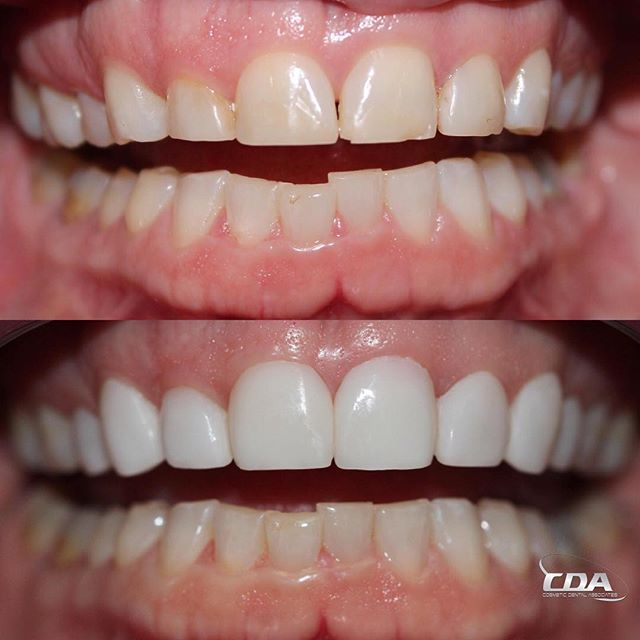 Can You Believe This Transformation Was Done Without Shaving Down The Teeth With My Prepless Veneers Dental Cosmetics Cosmetic Dentistry Veneers Perfect Teeth