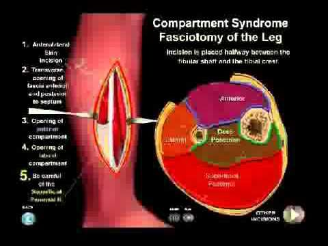 Compartment Syndrome Animation - Everything You Need to Know by Dr Nabil...