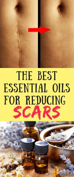 The Best Essential Oils For Reducing SCARS