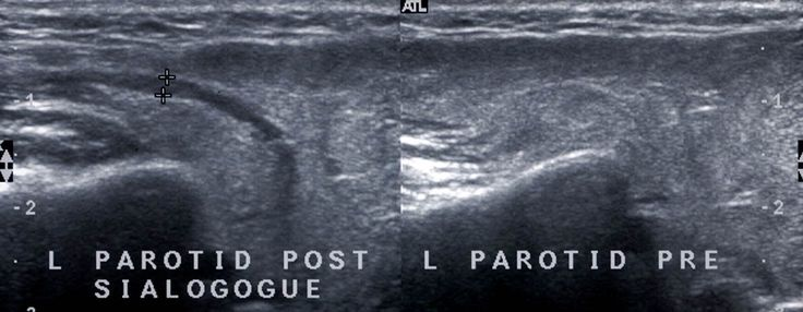 Parotid gland duct post and pre sialogogue