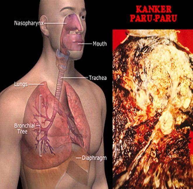 Atasi Kanker Paru Paru Secara Alami >> Kanker paru paru adalah pertumbuhan sel kanker yang tidak terkendali dalam jaringan paru. Patogenesis kanker paru belum benar-benar di pahami. Sepertinya sel mukosal bronkial mengalami perubahan metaplastik sebagai respon tehadap paparan kronis dari partikel yang terhidup dan melukai paru. Sebagai respon dari luka selular, proses reaksi dan radang akan berevolusi. Sel basal mukosal akan mengalami proliferasi dan terdiferensiasi menjadi sel goblet yang…
