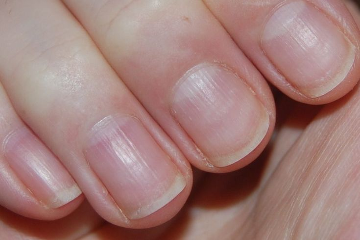 What Are Vertical Ridges in Nails A Sign Of?