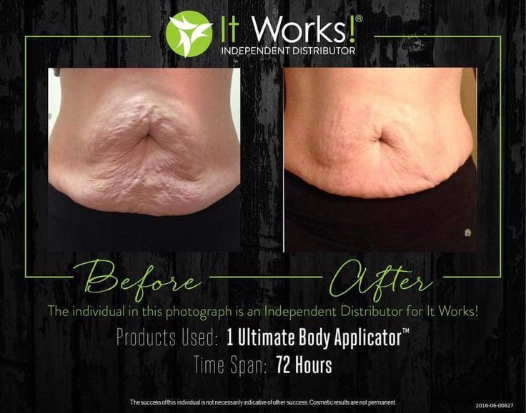 """Cyndi was the biggest skeptic. """"These were my very first wrap results, back when I was trying to prove it couldn't possibly work! I had lost 51 pounds with diet and exercise and while I was looking great in clothing, my stomach was a disaster. I didn't want to try the wrap, I told Danielle it was water loss, it was temporary and VOODOO. She begged me to try it out because if it worked on my stomach, she was going to sell it in the salon. As they say, the rest is history!"""""""