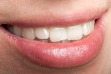 Using Serrapeptase for Pain After Dental Procedures