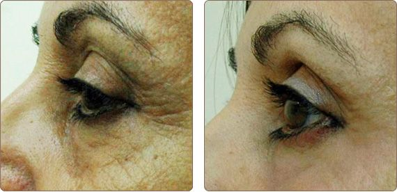 Before and after results from PixelPerfect skin resurfacing treatment