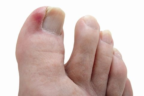 Ingrown toenails and how to treat them.