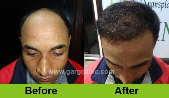 Regain your original hairline by hair transplanting which will gain you confidence in front of others. Avoid losing hair with http://www.gargclinic.com/  #hairtransplant  #baldness  #hairfall #hairlosstreatment  #hairloss