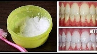 Receding Gums Treatment - How to Stop Receding Gums Naturally at Home - YouTube