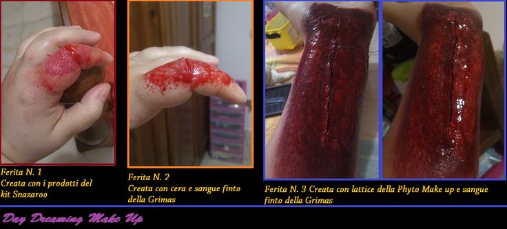 Broken Finger & Arm