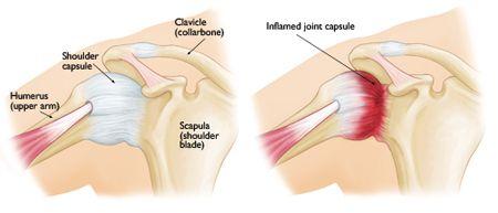 Frozen Shoulder-OrthoInfo - AAOS