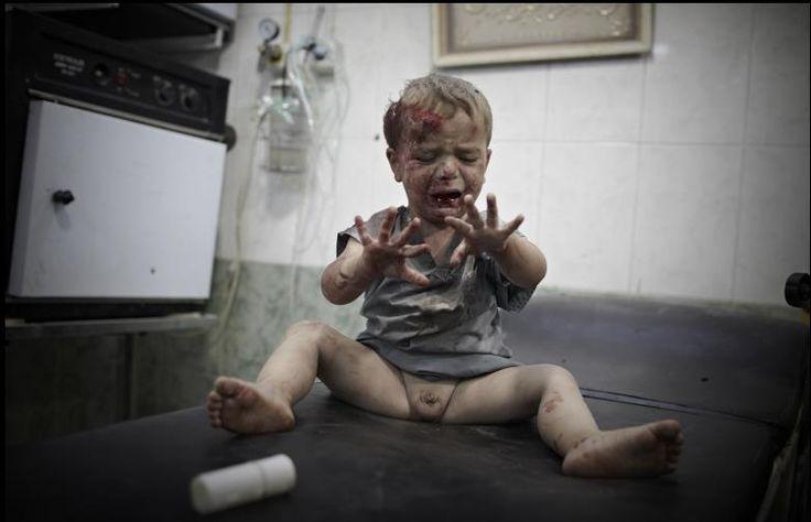 Wounded Baby  - Aleppo Sebastiano Tomada