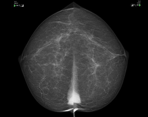 Triangular opacities seen medially in both breasts represent the sternalis muscle, which is present in ~5% of the population. Case courtesy Dr Mark Holland | Radiology Case | Radiopaedia.org