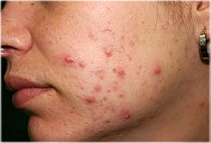 Now let´s check - Acne Treatments at Home - remedieshome.com