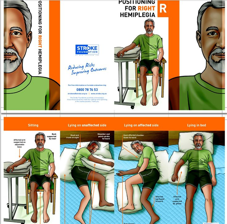 37 best ot stroke images on pinterest physical therapy stroke stroke patient education positioning for right hemiplegia negle Image collections