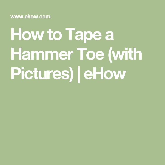 How to Tape a Hammer Toe (with Pictures) | eHow