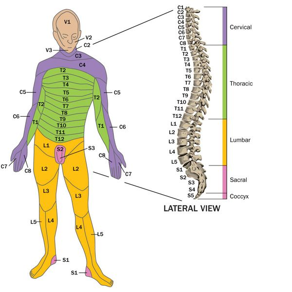 Spinal cord injury C3/4, C4/5, C5/6 T12 L3, L4, L5, S1