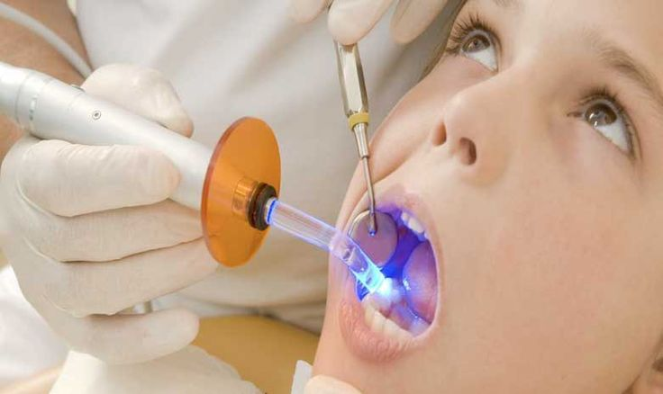 What You Need To Know About Dental Fillings and Sealants #ForYourChildsHealth http://www.safbaby.com/dental-fillings-mercury-andor-bpa-exposure/?utm_campaign=coschedule&utm_source=pinterest&utm_medium=SafBaby&utm_content=What%20You%20Need%20To%20Know%20About%20Dental%20Fillings%20and%20Sealants