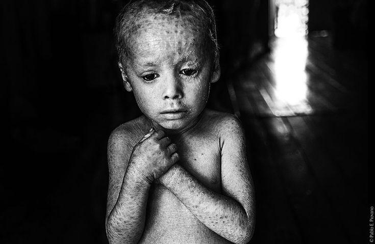 Come il glifosato sta uccidendo l'Argentina      Il bambino di cristallo. Lucas Techeira ha 3 anni ed è nato con ittiosi, malattia che sgretola la pelle. Sua madre è entrata in contatto con il glifosato del suo orto durante la gravidanza.  Alicia baja, Argentina