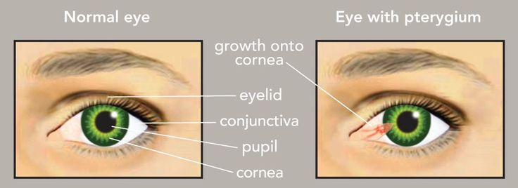 Pterygium And Pinguecula Pterygium Surfer S Eye