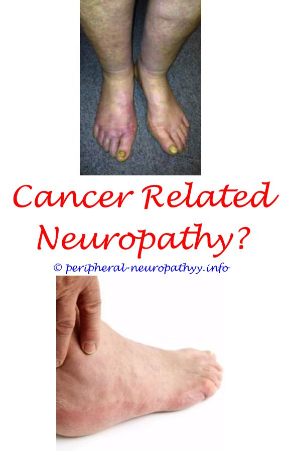 natural treatment for chemo induced neuropathy - diabetic sandals if no neuropathy.vitamin b12 deficiency symptoms peripheral neuropathy how long does chemo neuropathy last metabolic neuropathy ppt 6000066782