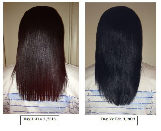 Hairfinity before and after picHairfinity Vitamins, Hairfinity Coupon