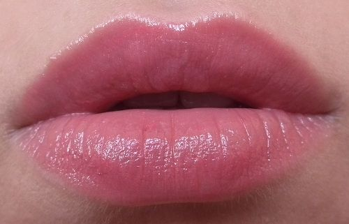 how to get rid of lip pigmentation