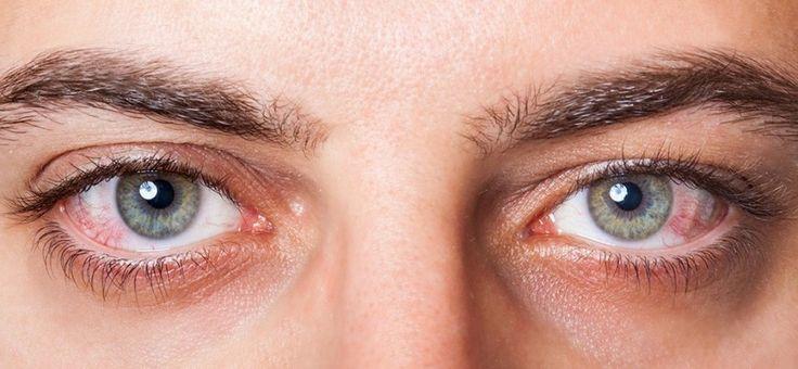 Un grupo de investigadores canadienses desarrolaron una lente intraocular artificial para mejorar la visión.