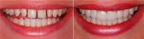 Lente-de-contato-dental