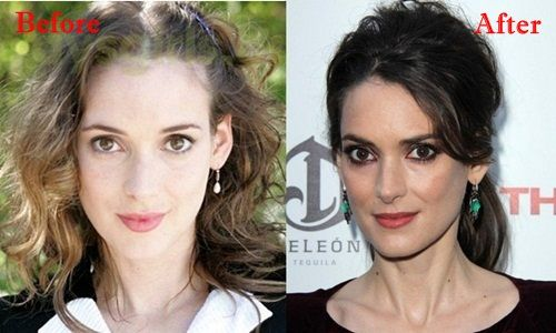 Winona Ryder Plastic Surgery Before and After