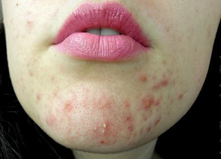 Managing and treating chin acne including cystic chin acne is hectic and tricky. Find out what causes chin acne, treatments for adults including pregnancy acne and what you can do for acne pimples n your chin during pregnancy. Acne on chin has various meaning as far as your hormones, growth factors and general health are