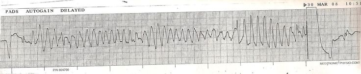 From Wikiwand: Lead II ECG showing torsades being shocked by an implantable cardioverter-defibrillator back to the patient's baseline cardiac rhythm.